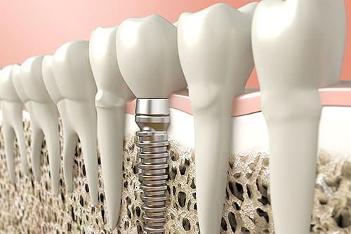 インプラント歯科